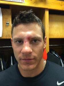 Derek Dietrich suffers small, non-displaced fracture to top of his nose.